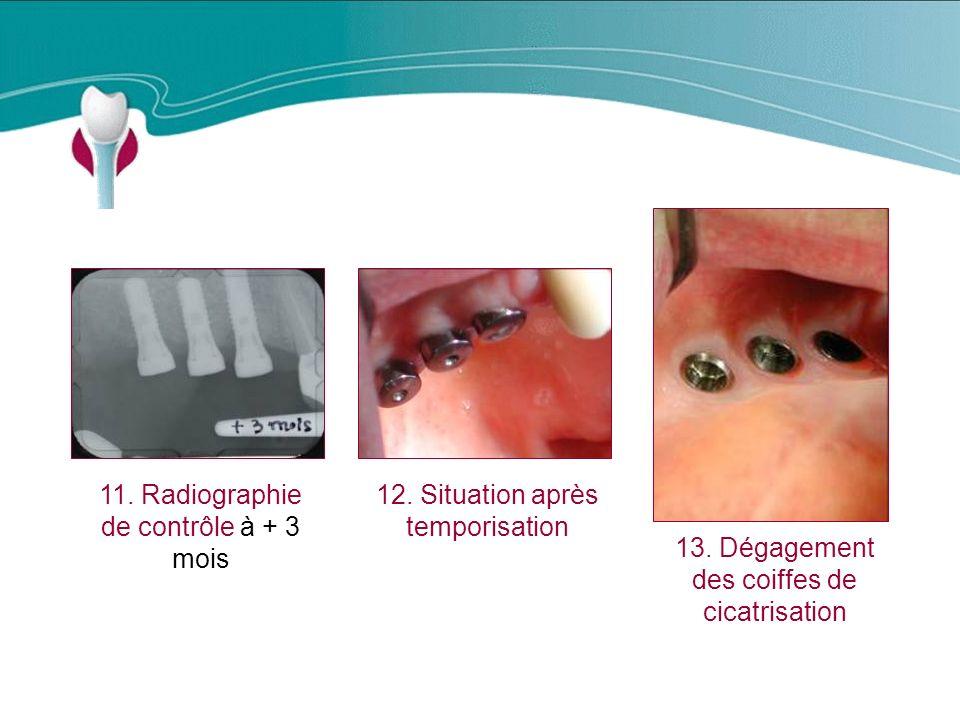 Cas Clinique n°12 11. Radiographie de contrôle à + 3 mois
