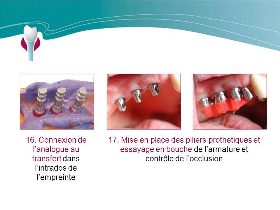 Cas Clinique n°12 16. Connexion de l'analogue au transfert dans l'intrados de l'empreinte.