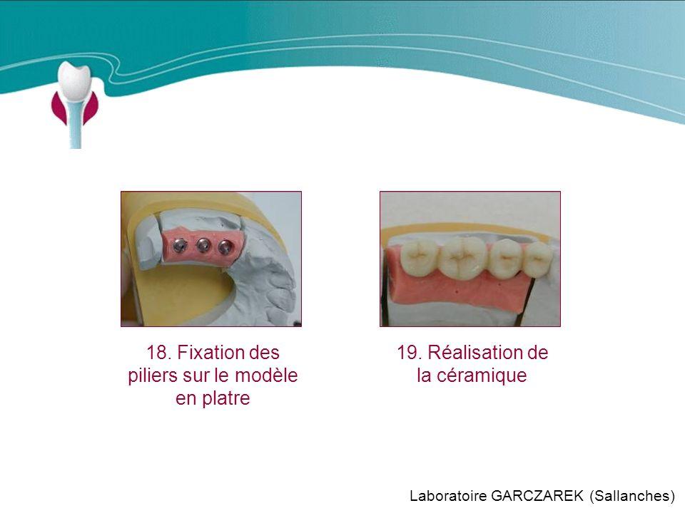 Cas Clinique n°12 18. Fixation des piliers sur le modèle en platre
