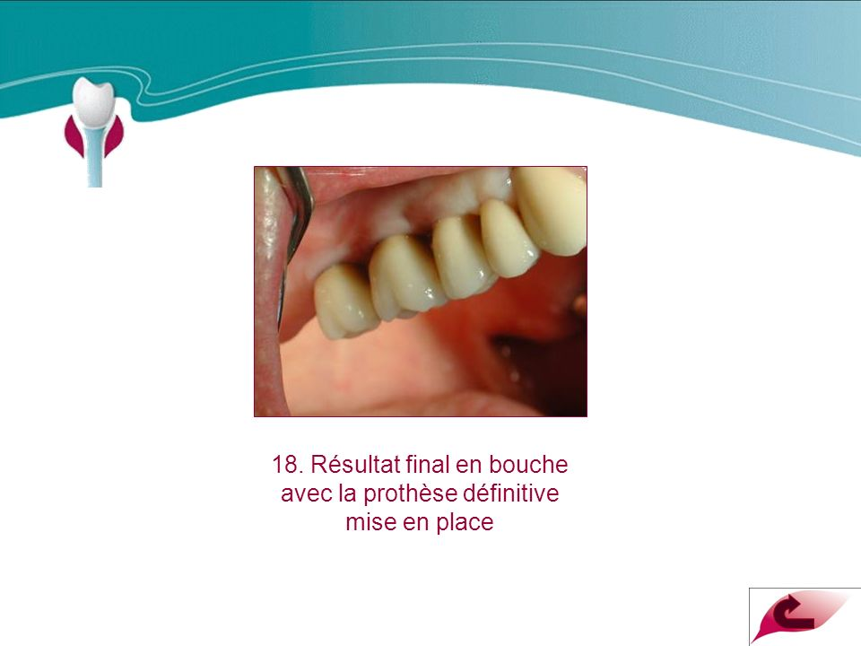18. Résultat final en bouche avec la prothèse définitive mise en place