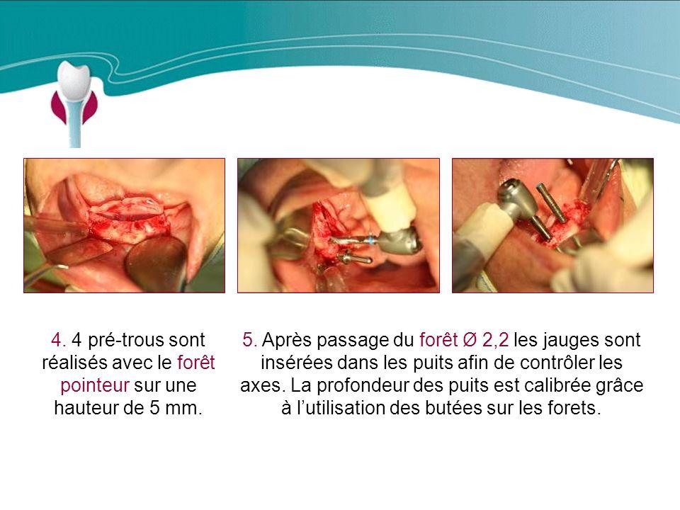 Cas Clinique n°13 4. 4 pré-trous sont réalisés avec le forêt pointeur sur une hauteur de 5 mm.
