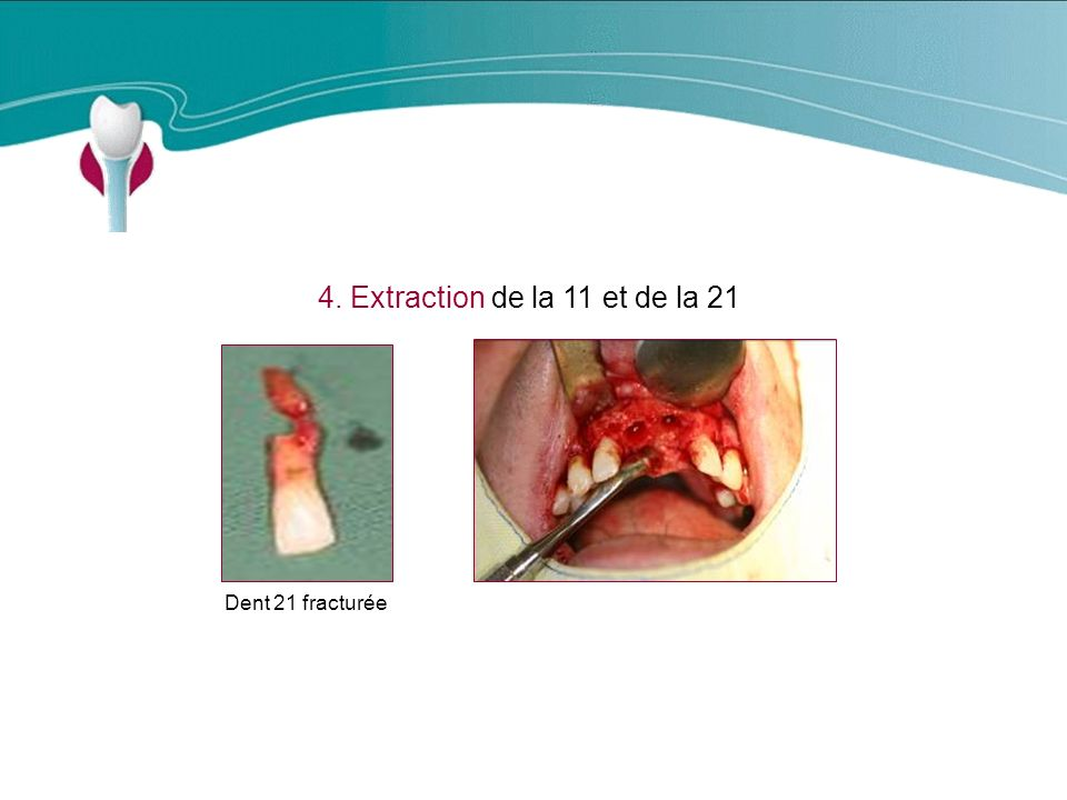 4. Extraction de la 11 et de la 21