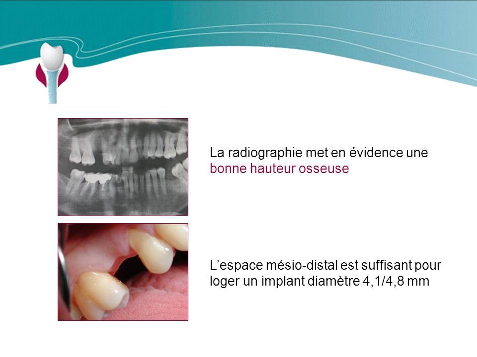 Cas Clinique n°2 La radiographie met en évidence une bonne hauteur osseuse.