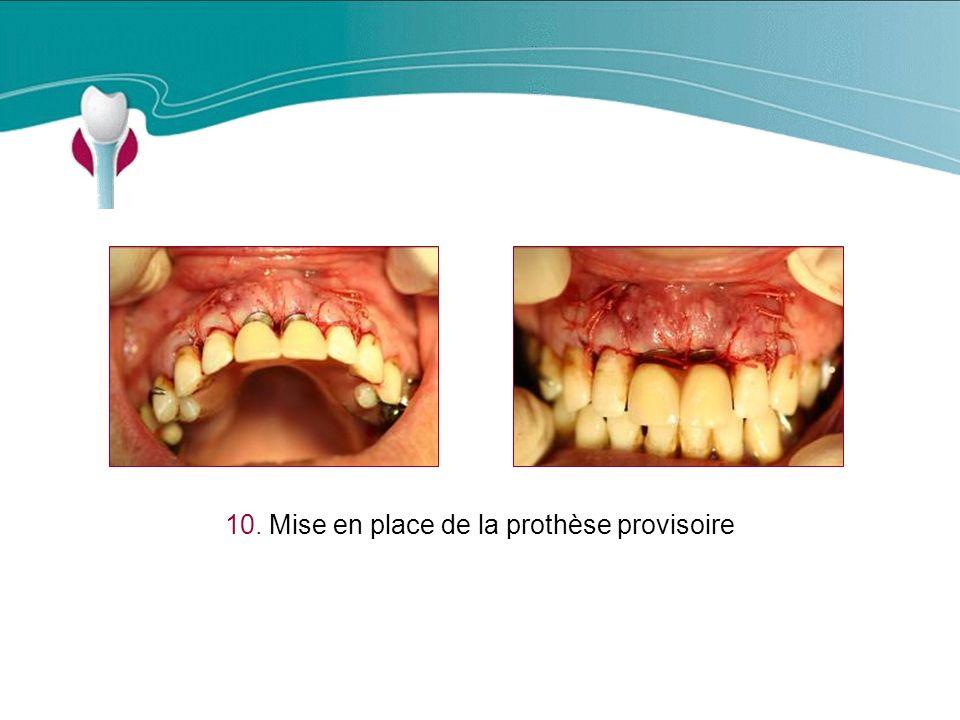 10. Mise en place de la prothèse provisoire