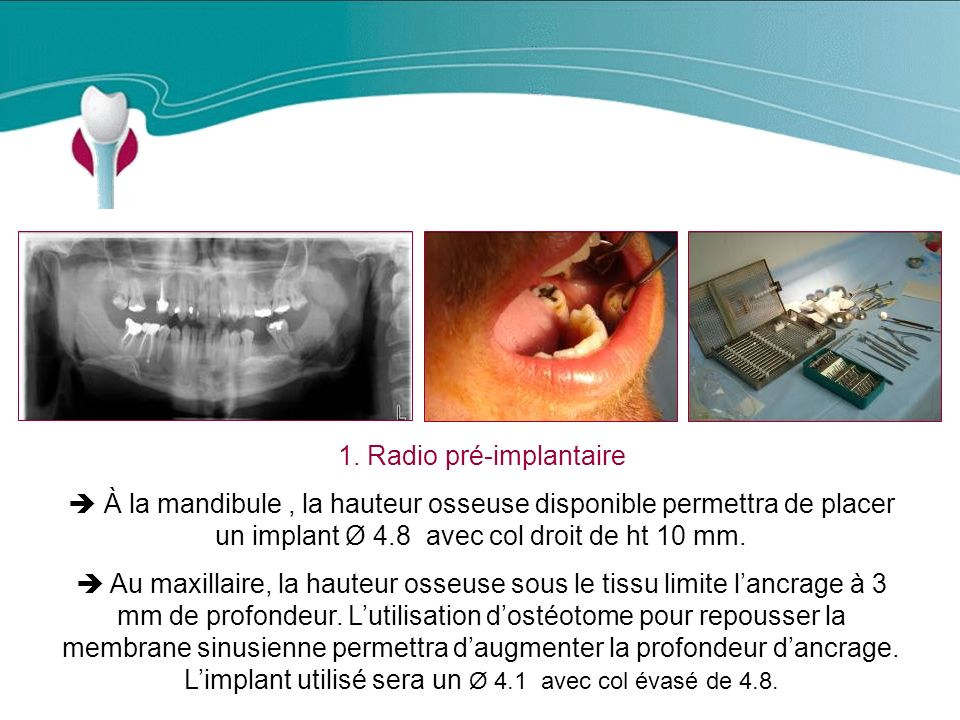1. Radio pré-implantaire