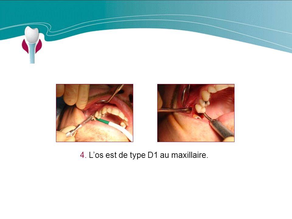 4. L'os est de type D1 au maxillaire.