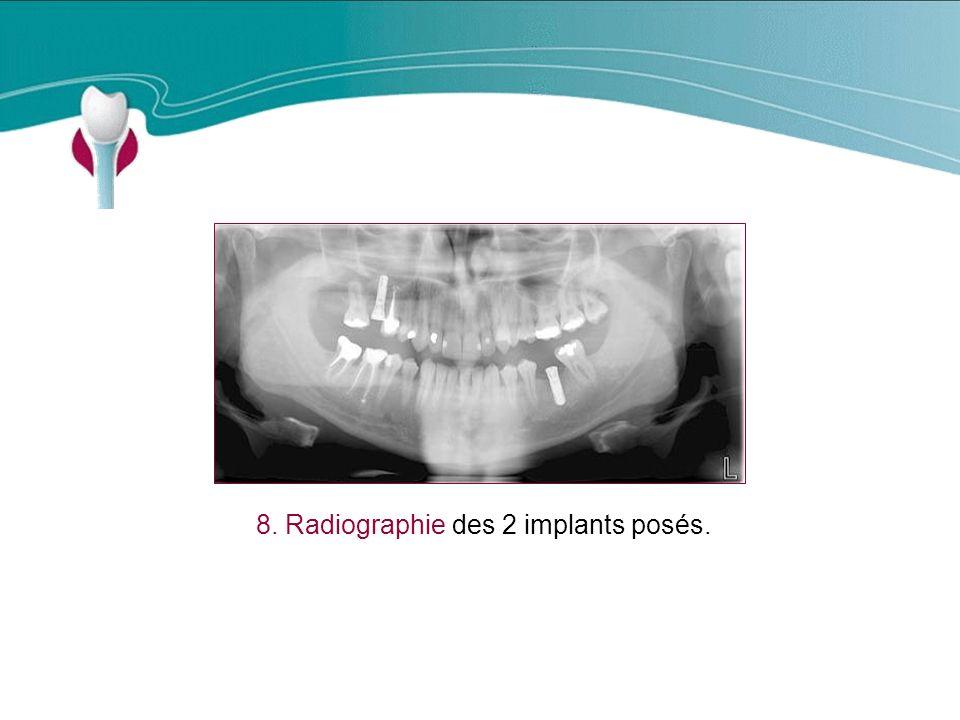 8. Radiographie des 2 implants posés.
