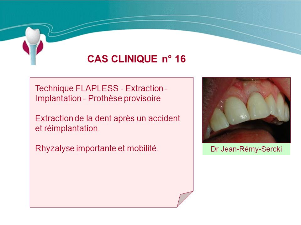 CAS CLINIQUE n° 16 Technique FLAPLESS - Extraction - Implantation - Prothèse provisoire. Extraction de la dent après un accident et réimplantation.