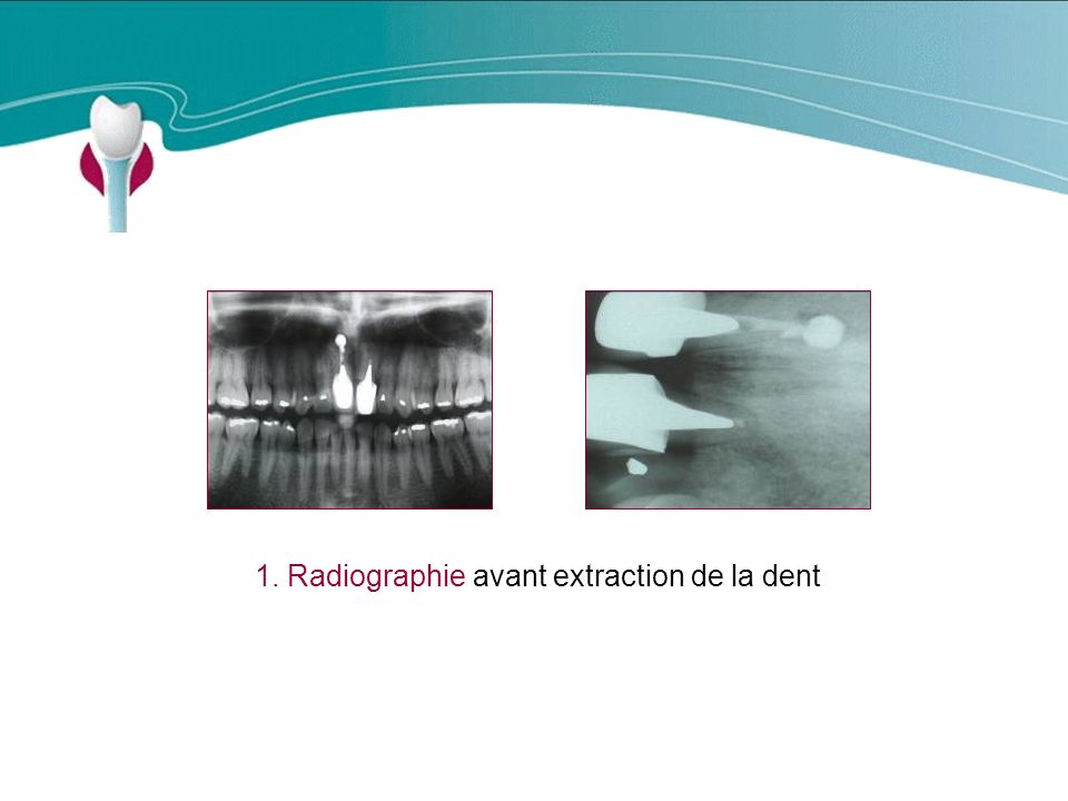 1. Radiographie avant extraction de la dent