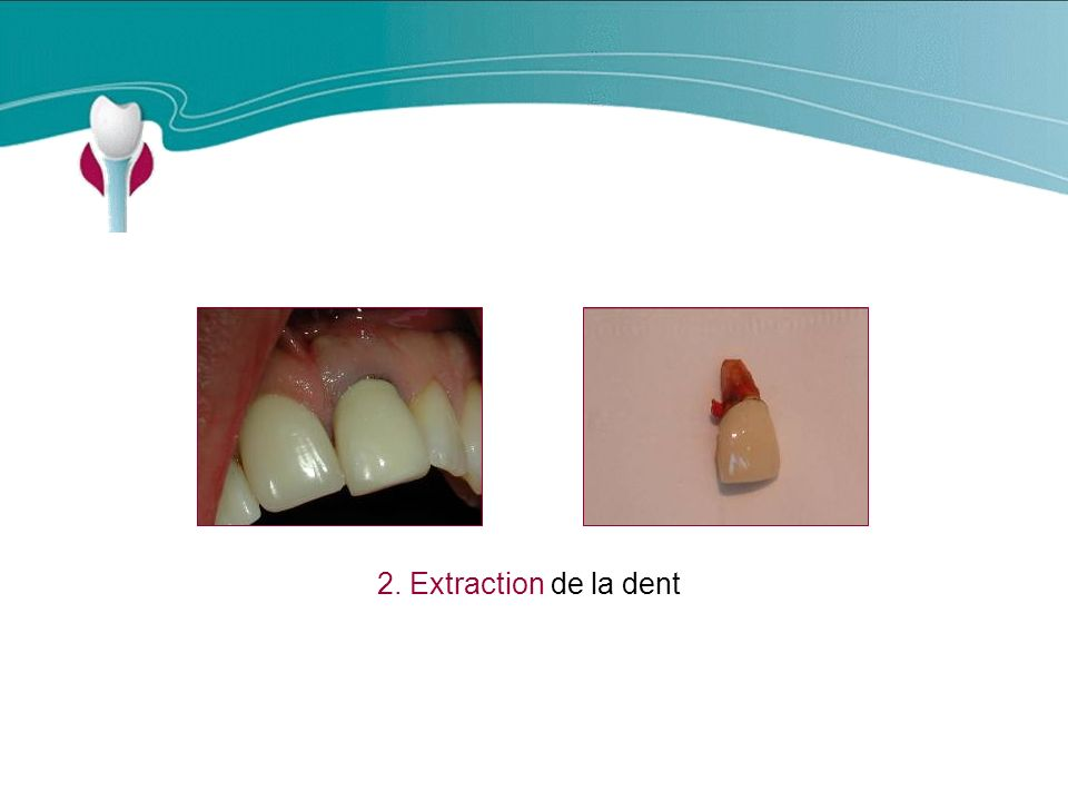 Cas Clinique n°16 2. Extraction de la dent