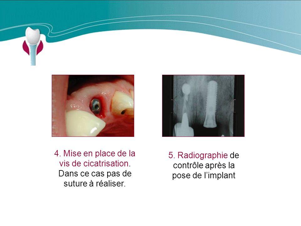 Cas Clinique n°16 4. Mise en place de la vis de cicatrisation.