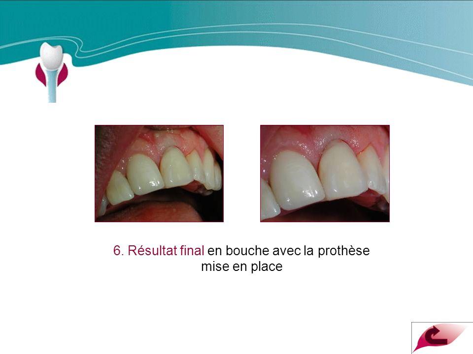 6. Résultat final en bouche avec la prothèse mise en place