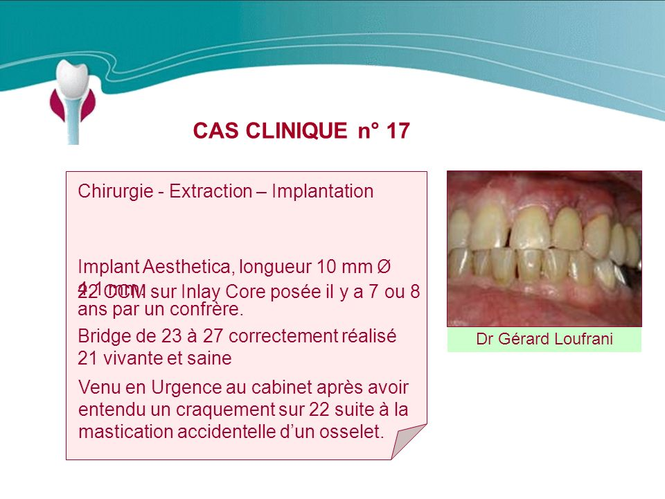 CAS CLINIQUE n° 17 Chirurgie - Extraction – Implantation