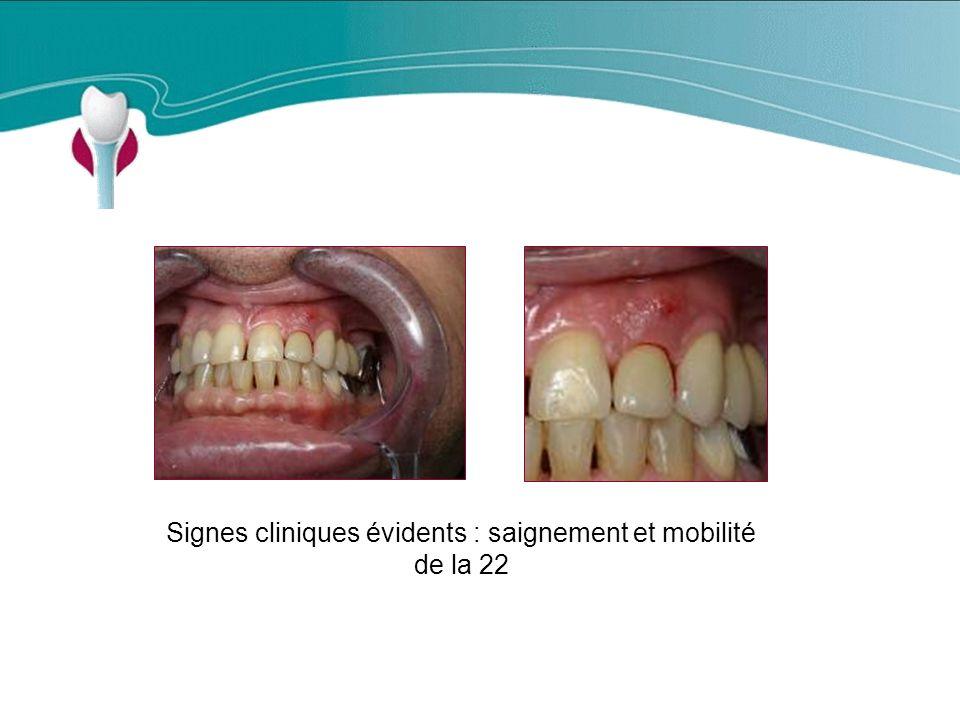 Signes cliniques évidents : saignement et mobilité de la 22
