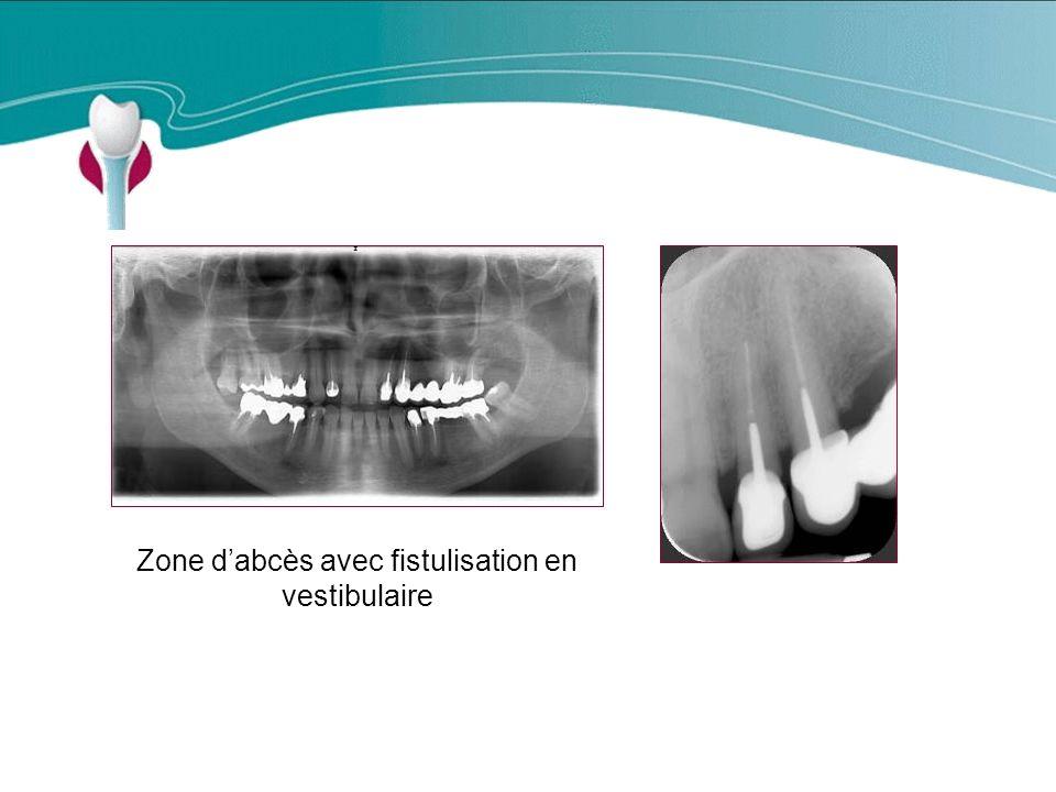 Zone d'abcès avec fistulisation en vestibulaire