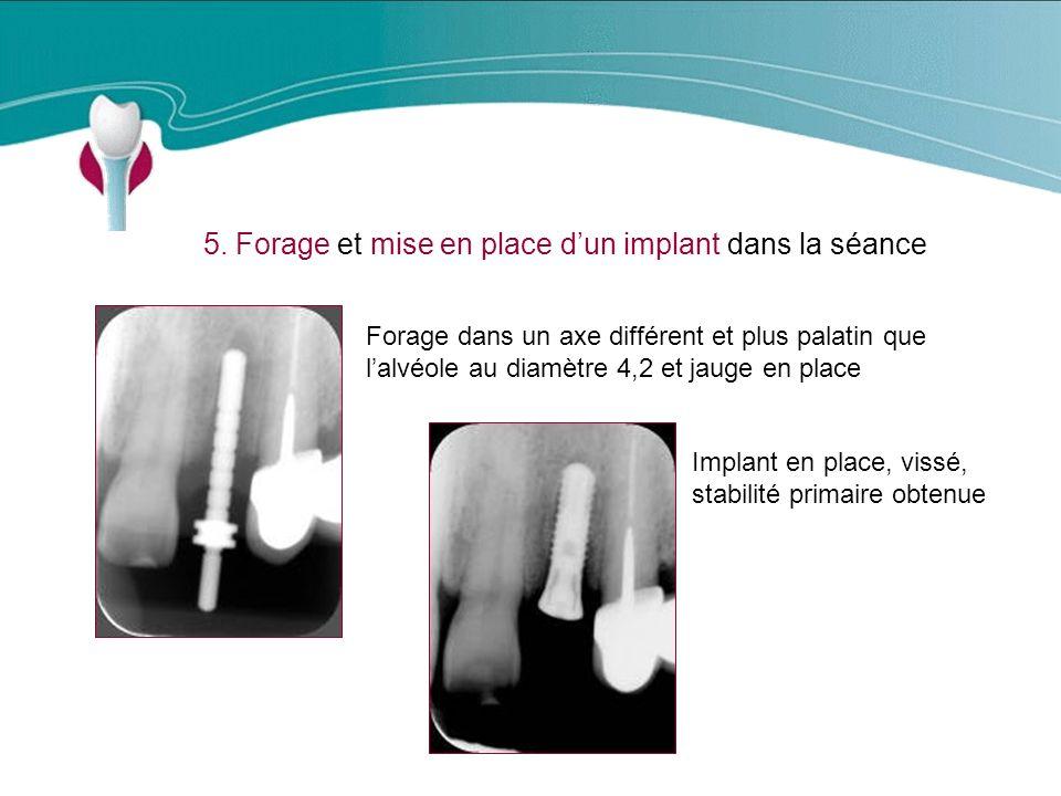5. Forage et mise en place d'un implant dans la séance