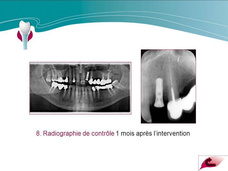 8. Radiographie de contrôle 1 mois après l'intervention