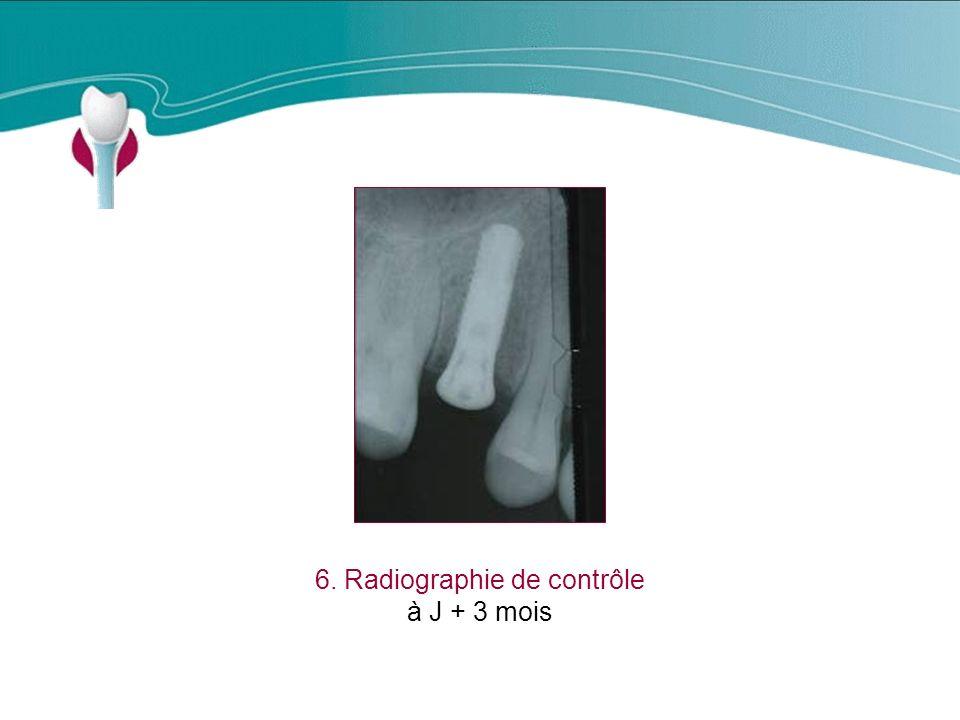 6. Radiographie de contrôle
