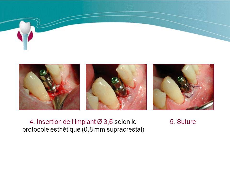 Cas Clinique n°18 4. Insertion de l'implant Ø 3,6 selon le protocole esthétique (0,8 mm supracrestal)