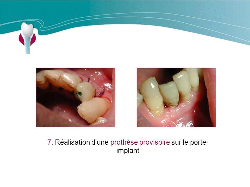 7. Réalisation d'une prothèse provisoire sur le porte-implant