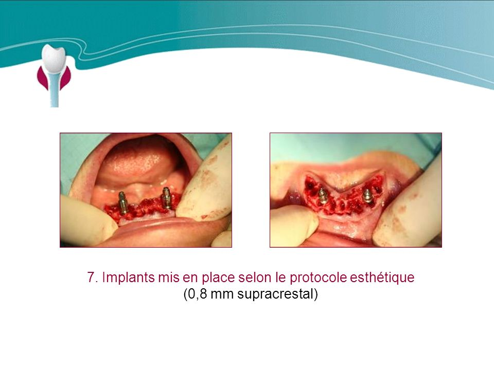 Cas Clinique n°19 7. Implants mis en place selon le protocole esthétique (0,8 mm supracrestal)