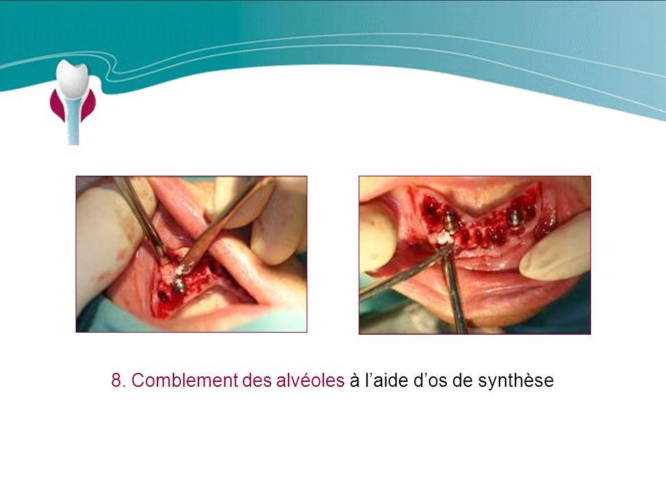 8. Comblement des alvéoles à l'aide d'os de synthèse