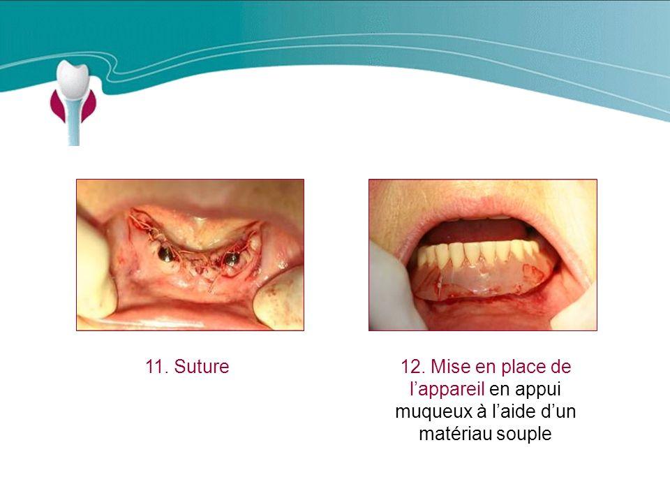 Cas Clinique n°19 11. Suture. 12.