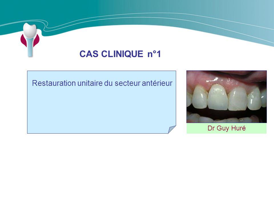 CAS CLINIQUE n°1 Restauration unitaire du secteur antérieur