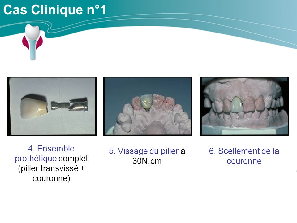 Cas Clinique n°1 4. Ensemble prothétique complet (pilier transvissé + couronne) 5. Vissage du pilier à 30N.cm.