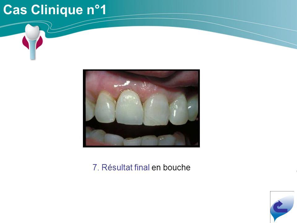 7. Résultat final en bouche