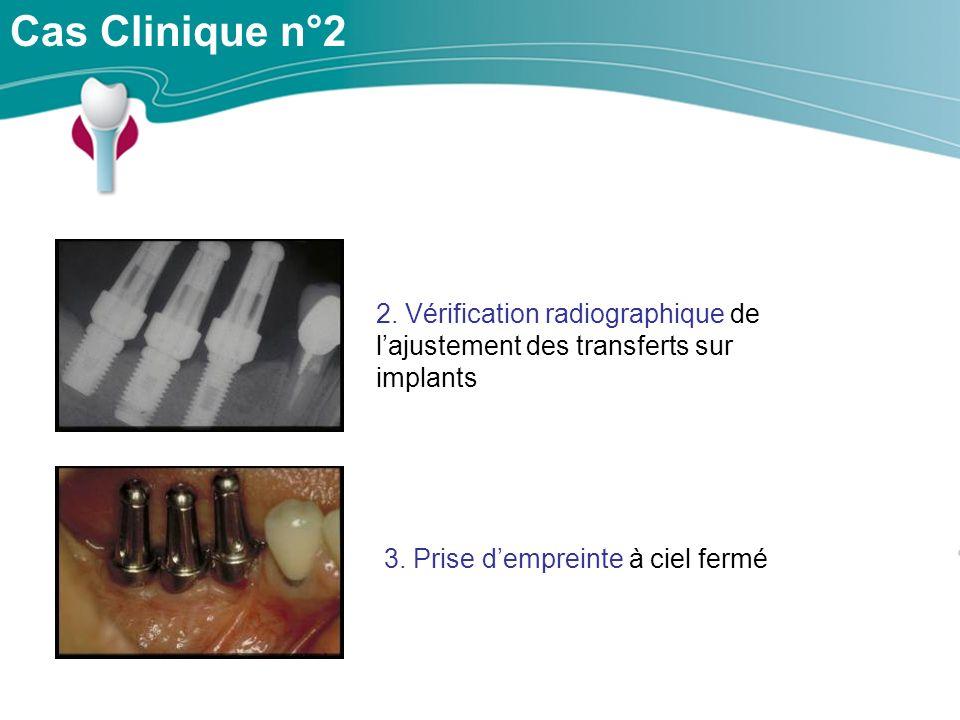 Cas Clinique n°2 2. Vérification radiographique de l'ajustement des transferts sur implants.