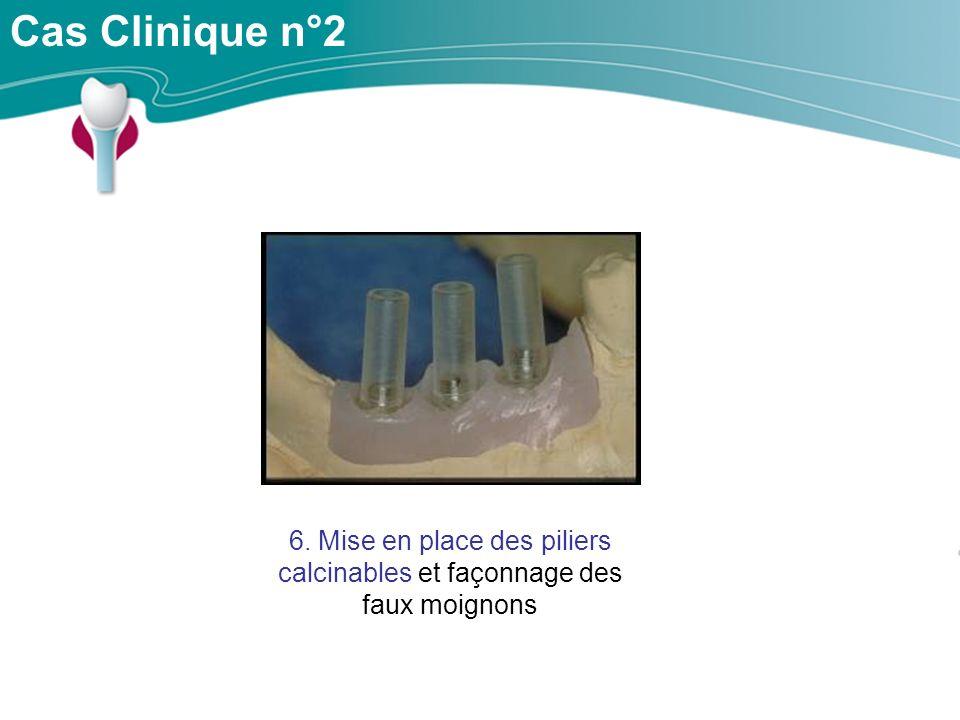 Cas Clinique n°2 6. Mise en place des piliers calcinables et façonnage des faux moignons