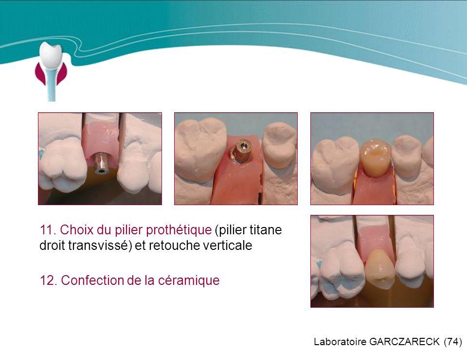 Cas Clinique n°2 11. Choix du pilier prothétique (pilier titane droit transvissé) et retouche verticale.