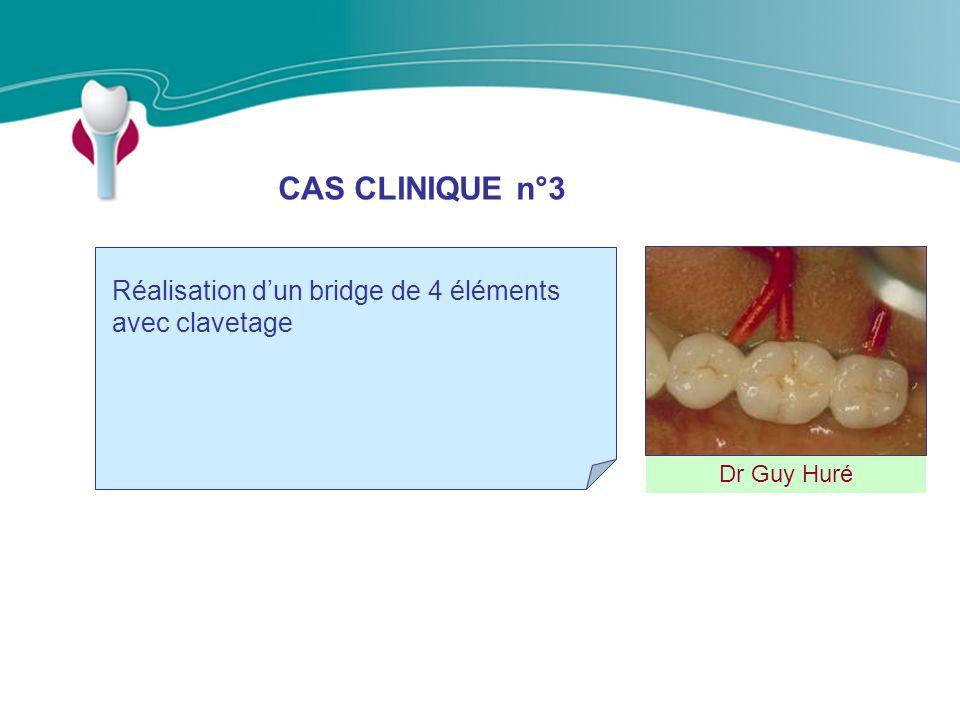 CAS CLINIQUE n°3 Réalisation d'un bridge de 4 éléments avec clavetage