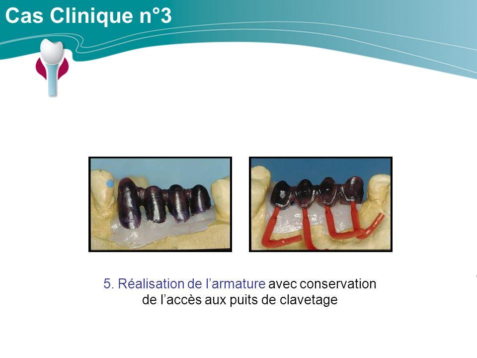 Cas Clinique n°3 5. Réalisation de l'armature avec conservation de l'accès aux puits de clavetage