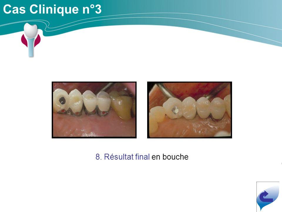 8. Résultat final en bouche