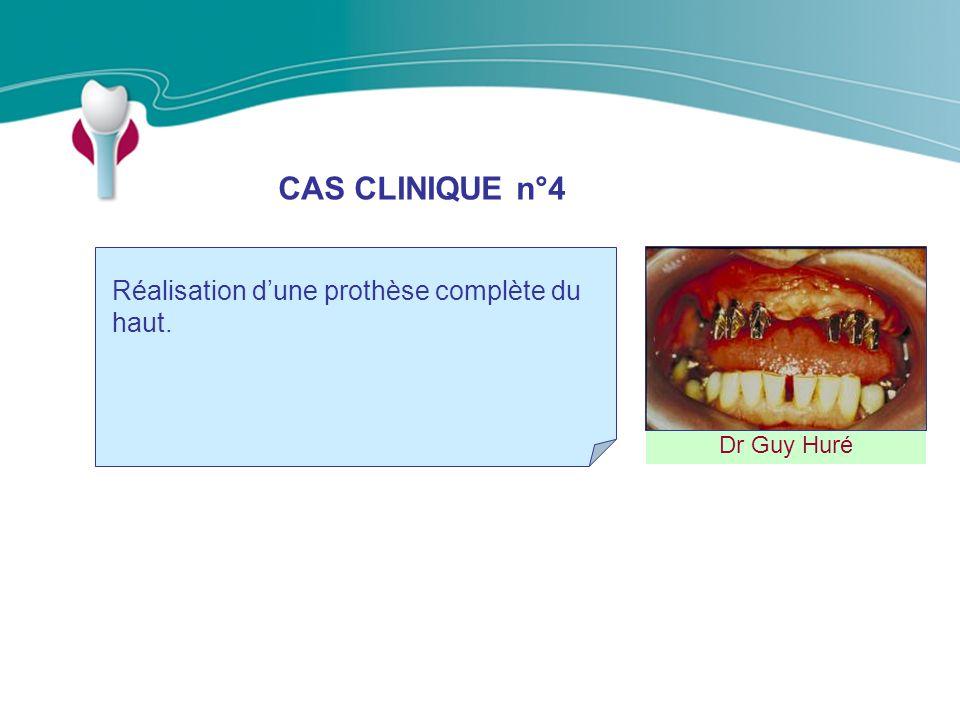 CAS CLINIQUE n°4 Réalisation d'une prothèse complète du haut.