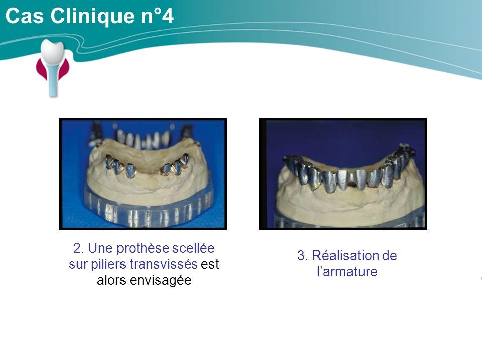 Cas Clinique n°4 2. Une prothèse scellée sur piliers transvissés est alors envisagée.