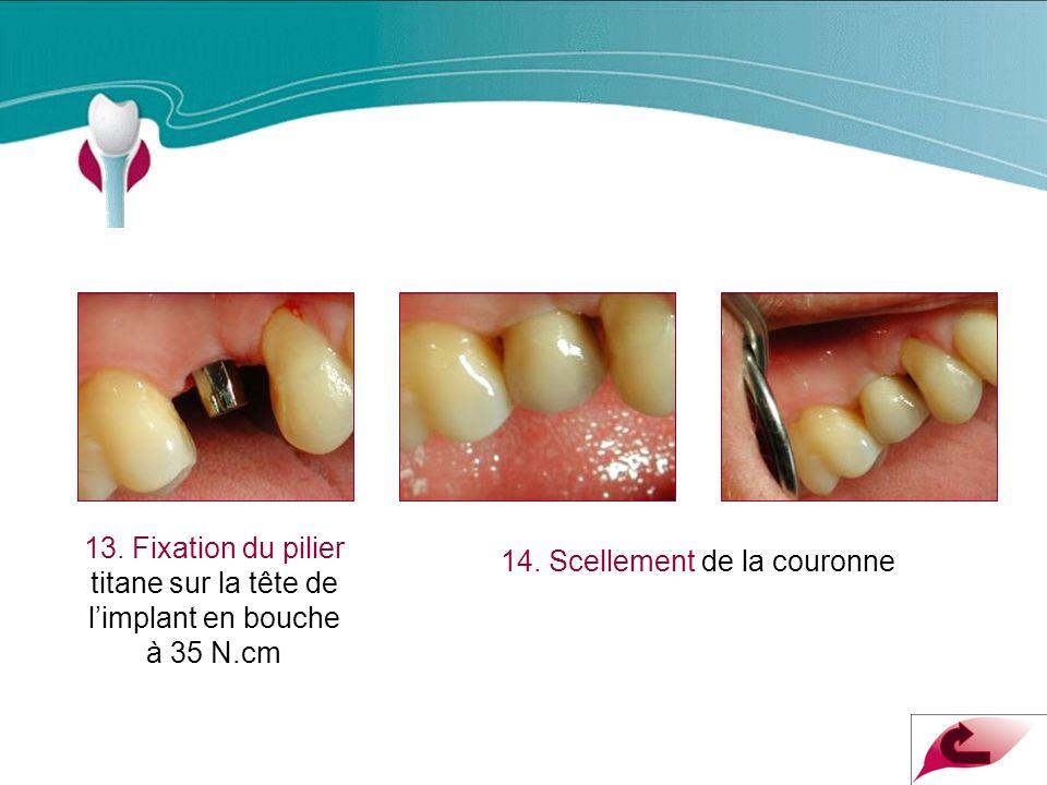 Cas Clinique n°2 13. Fixation du pilier titane sur la tête de l'implant en bouche à 35 N.cm.