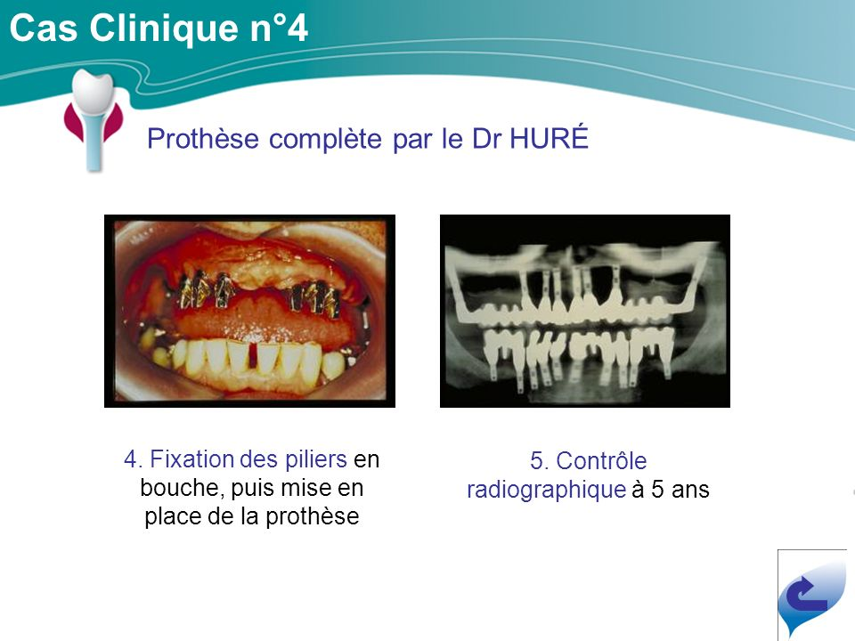 Cas Clinique n°4 Prothèse complète par le Dr HURÉ