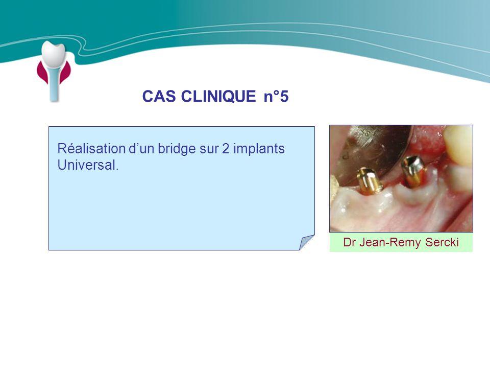 CAS CLINIQUE n°5 Réalisation d'un bridge sur 2 implants Universal.