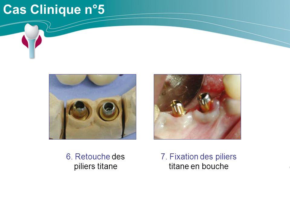 Cas Clinique n°5 6. Retouche des piliers titane