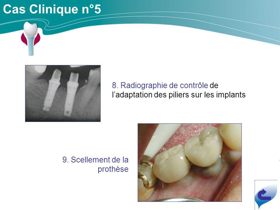 Cas Clinique n°5 8. Radiographie de contrôle de l'adaptation des piliers sur les implants.