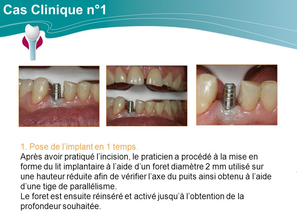 Cas Clinique n°1 1. Pose de l'implant en 1 temps.