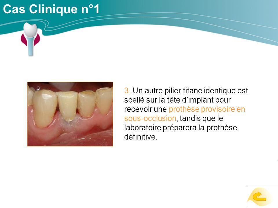 Cas Clinique n°1