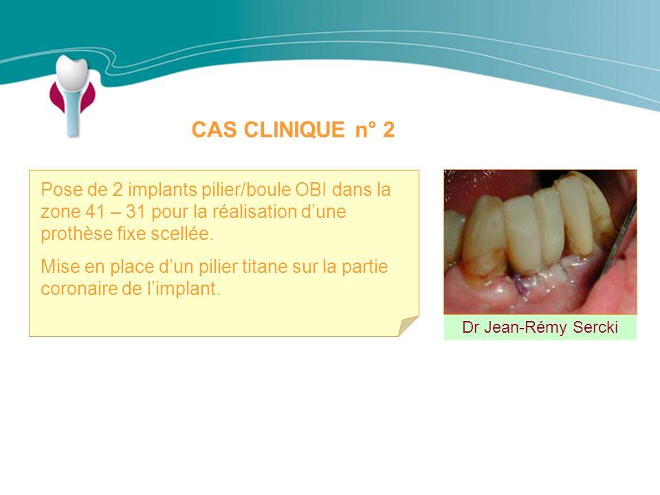 CAS CLINIQUE n° 2 Pose de 2 implants pilier/boule OBI dans la zone 41 – 31 pour la réalisation d'une prothèse fixe scellée.
