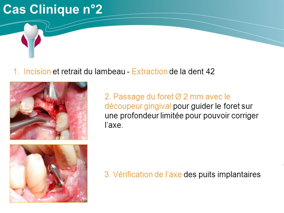 Cas Clinique n°2 Incision et retrait du lambeau - Extraction de la dent 42.