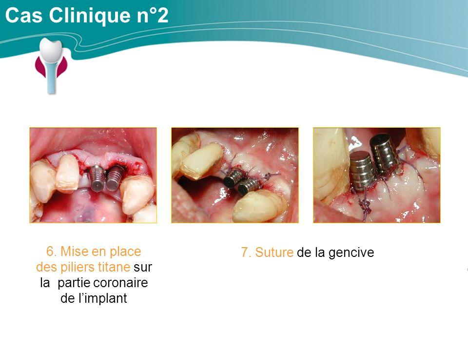 Cas Clinique n°2 6. Mise en place des piliers titane sur la partie coronaire de l'implant.