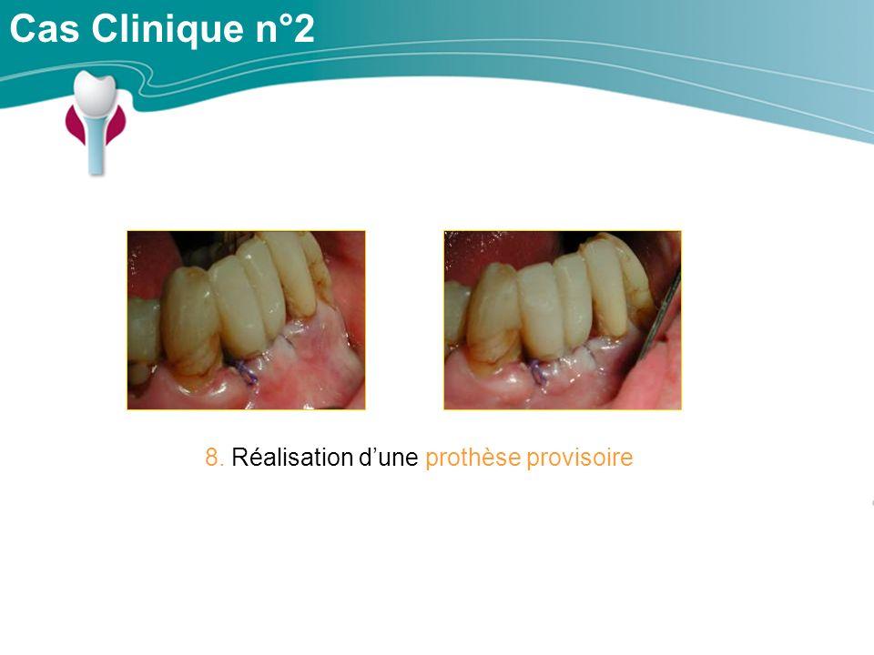 8. Réalisation d'une prothèse provisoire