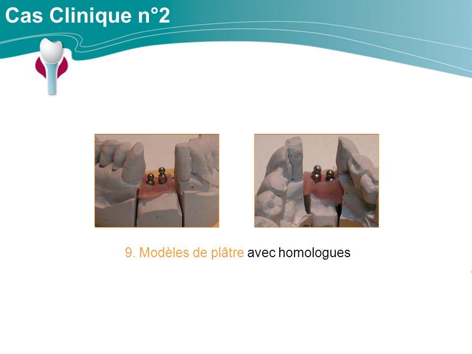 9. Modèles de plâtre avec homologues